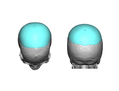 Custom-Skull-Implant-Cross-marking-on-design-Dr-Barry-Eppley-Indianapolis